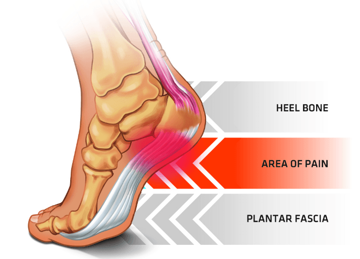 Plantar Fasciitis – Causes, Symptoms, and Exercises