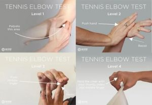 tennis elbow test